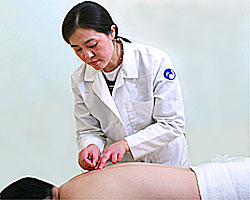 Dr. Ding applying needles during an acupuncture session